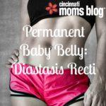Permanent Baby Belly: Diastasis Recti