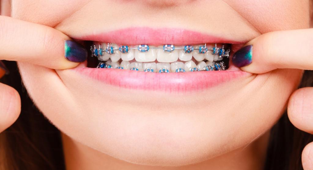 Orthodontic treatment: Northeast Orthodontic Specialists